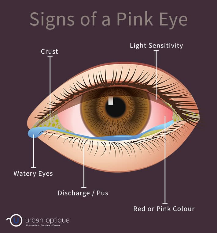 Diagram showing the symptoms of pink eye/conjunctivitis
